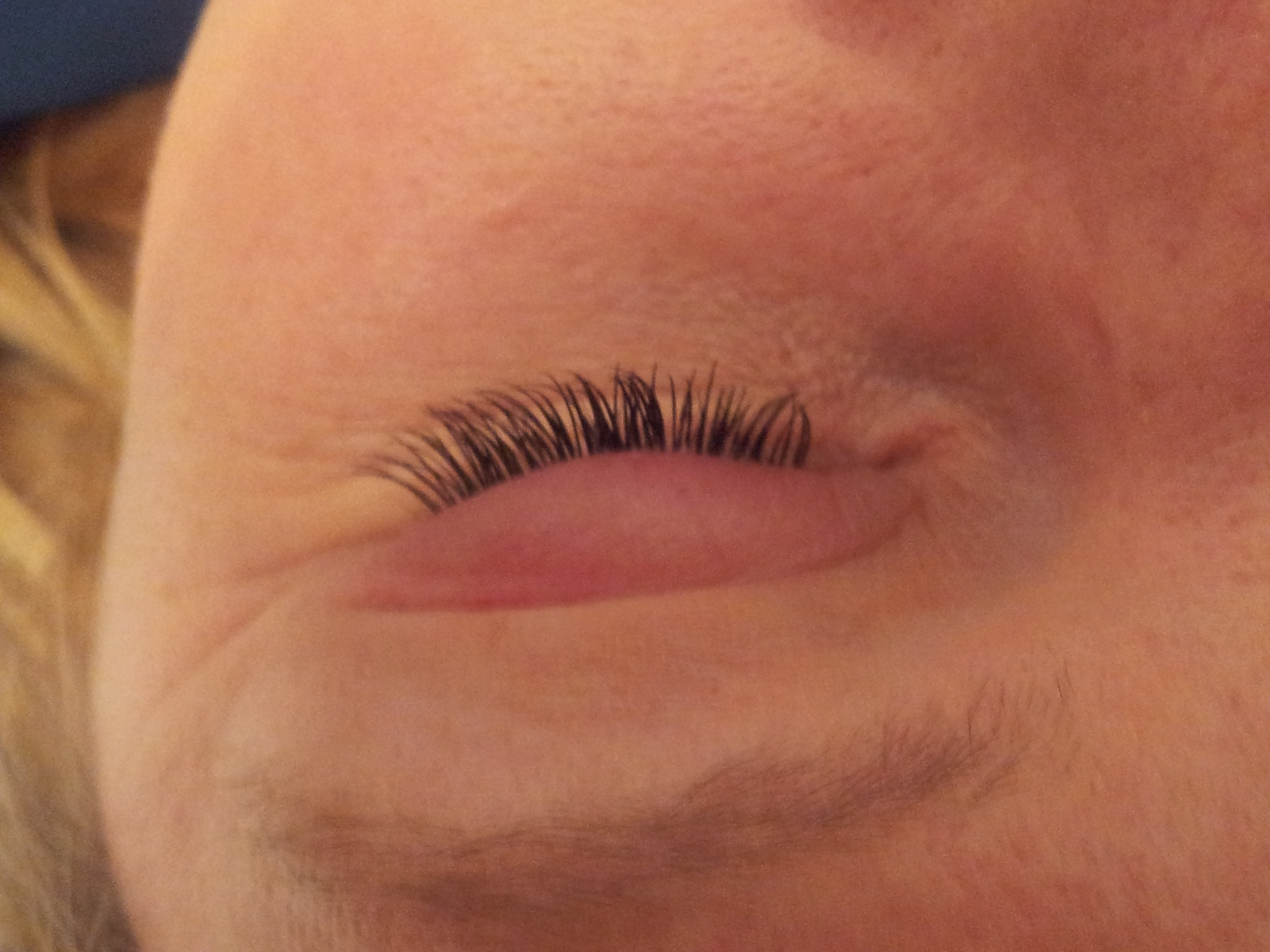 Allergic reactions to eyelash and brow treatments