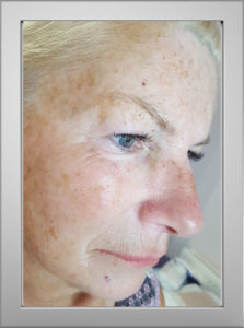 Microblading Norfolk before Caroline K
