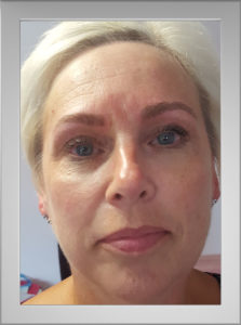 Microblading Norwich Norfolk after